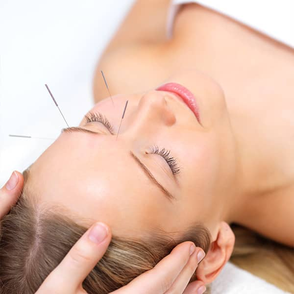 Facial cosmetic acupuncture elearning FCA1